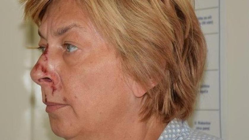 Chorwacka policja prosi o pomoc w ustaleniu tożsamości kobiety