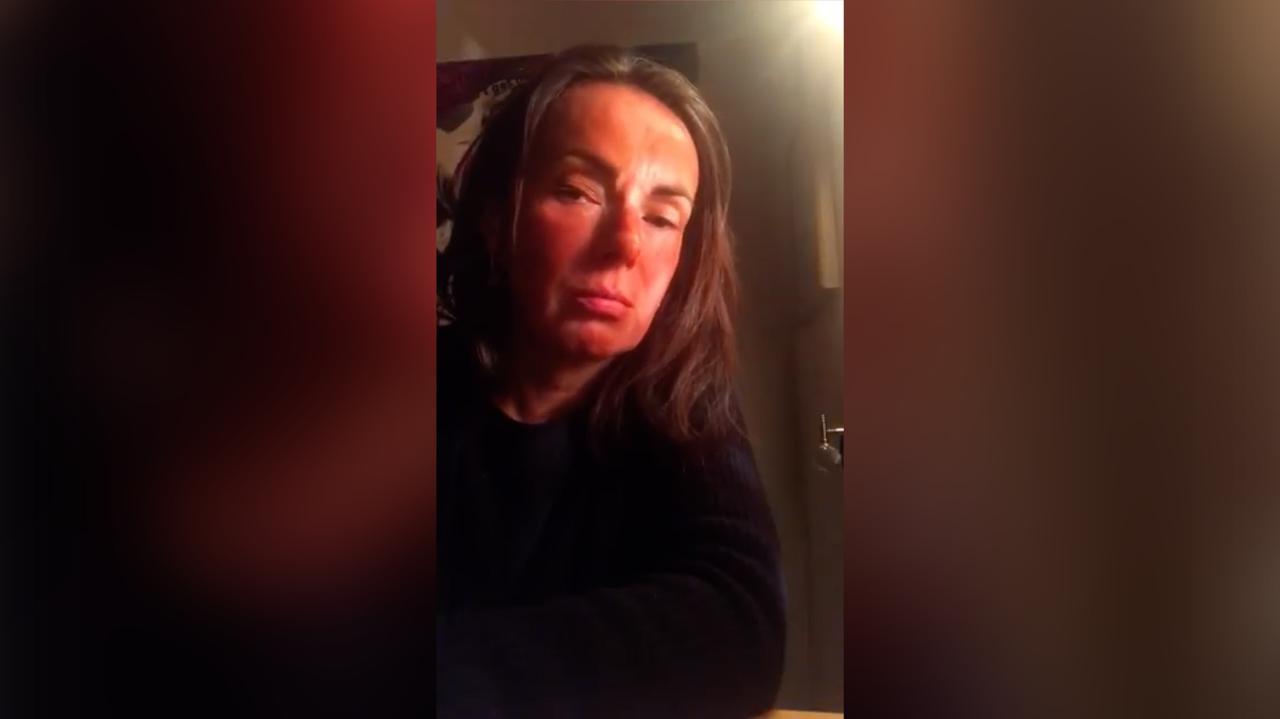 """Koronawirus w Polsce. Córka Kasi Kowalskiej w szpitalu. Apel piosenkarki do młodych ludzi """"zostańcie w domu"""" - TVN24"""