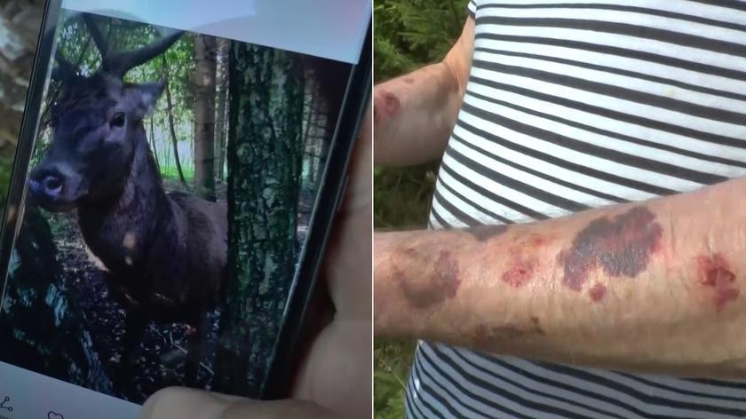 Jeleń zaatakował grzybiarzy w lesie