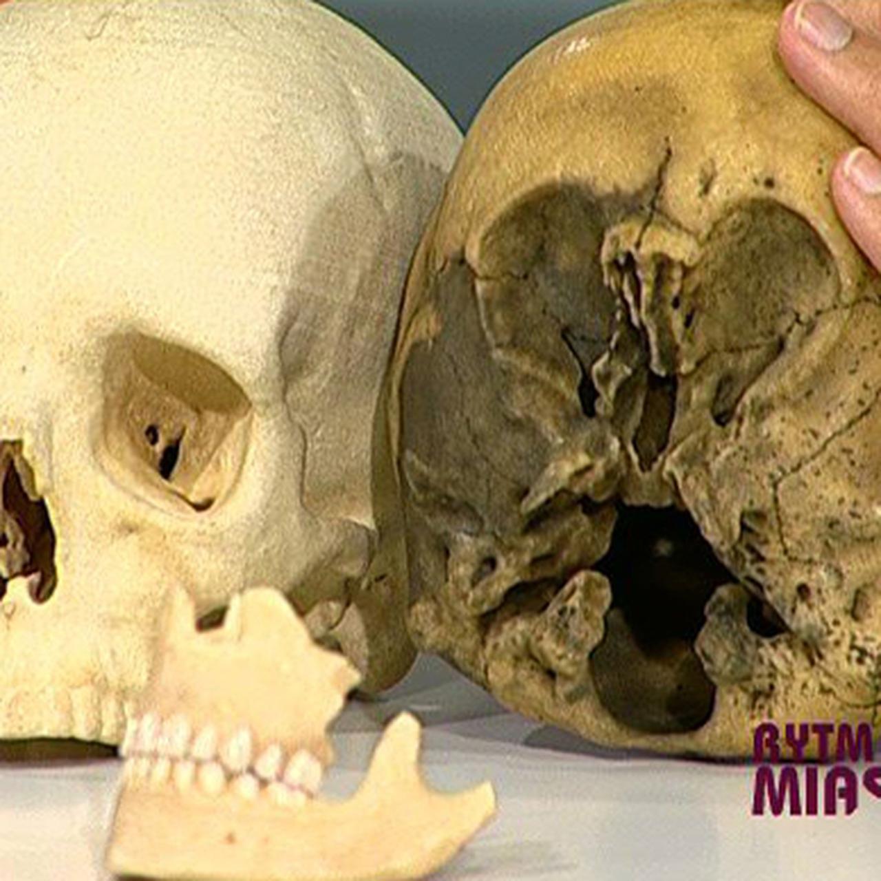 czaszka gwiezdnego dziecka